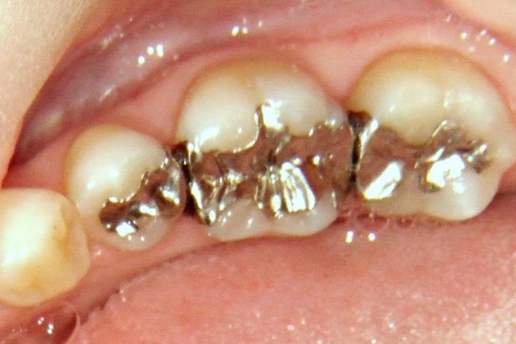 保険診療でよく見かける銀歯です