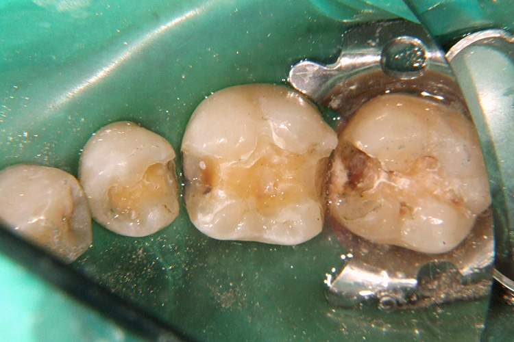 金属の銀歯を外して虫歯の大きさを診査。