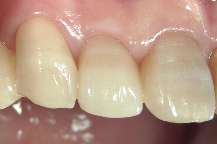 治療後です。歯列に溶け込んだ自然な修復が実現できました