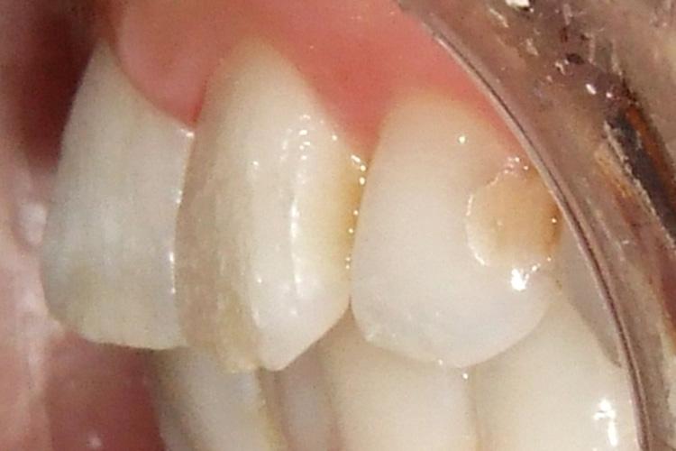 詰め物が変色し虫歯になっています