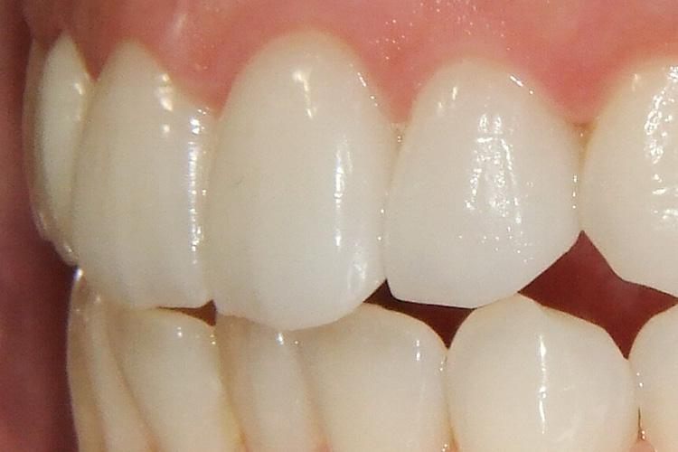 虫歯の予防だけでなくすっきりとした歯並びに