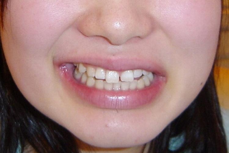 前歯に大きな隙間が開いて見た目が気になります