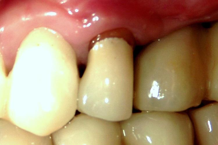 が を 歯 と 痛い 噛む もの 固い