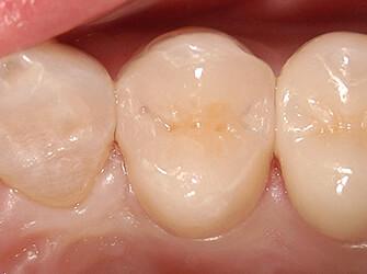 銀歯を綺麗に白くしたい