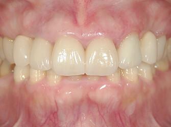 歯ぐきの腫れを治したい