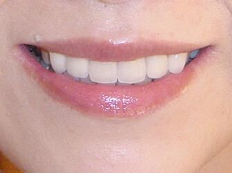 歯並びを良くしたい