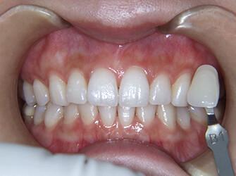 自分の歯を白くしたい