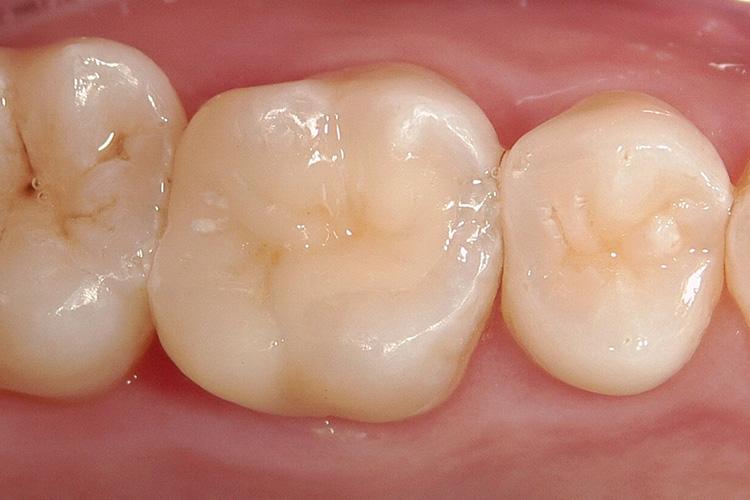 お口の中の金属でも特に保審美治療例写真