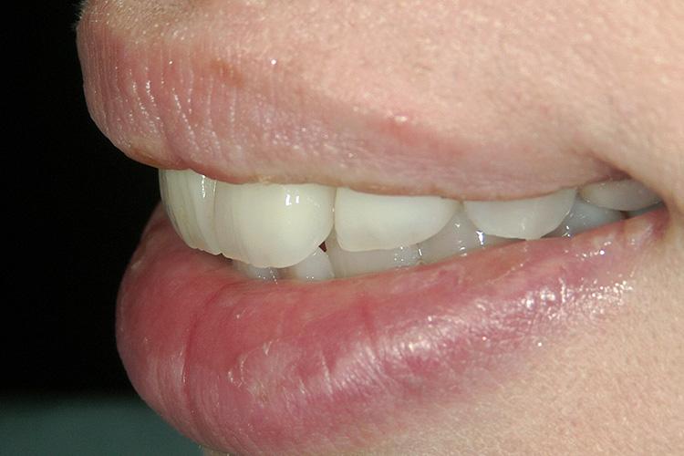 前歯に、歯の神経がすでに審美治療例写真