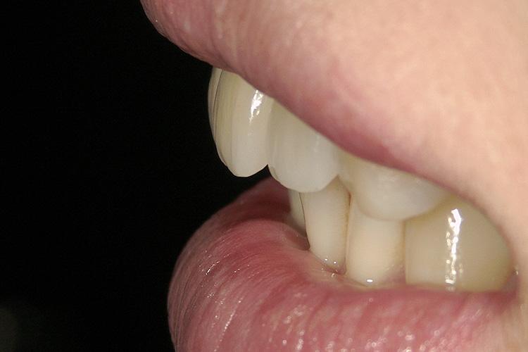 他院でセラミックの差し歯審美治療例写真