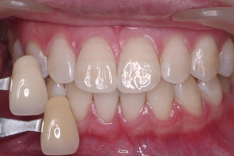 ホワイトニングは健康な歯審美治療例写真