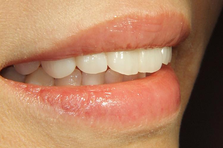 歯並びに悩んで矯正治療す審美治療例写真