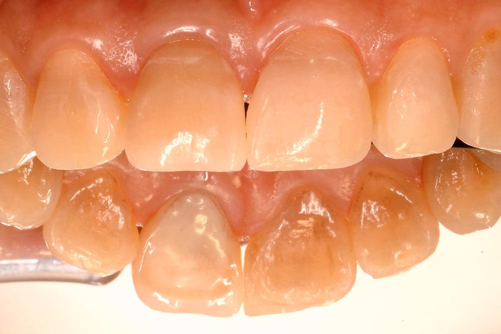 歯根が割れて、内部深く虫審美治療例写真